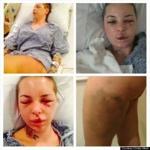 Christy Mack Assault