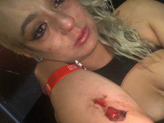 PHOTOS: Adult Star Nova Cane Calls Out Brad Knight for Assault